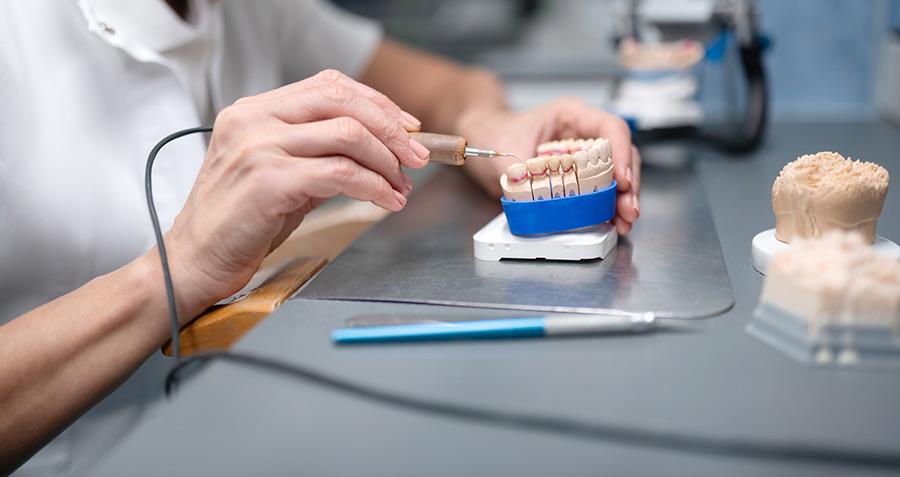 Implants et prothèses dentaires fabriqués dans le 41 | Ceram Centre