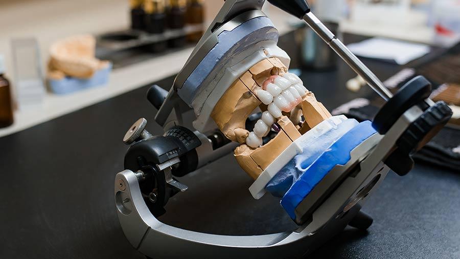 Prothésiste dentaire à Meusnes, rigueur et disponibilité dans le 41 | Ceram Centre