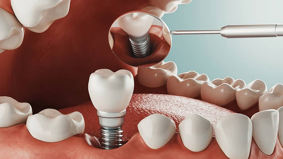 Implant dentaire à Meusnes, des professionnels sérieux et expérimentés dans le 41 | Ceram Centre